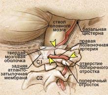 Нейрогенные боли в спине